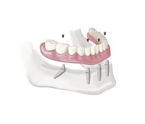 protesis_implantes